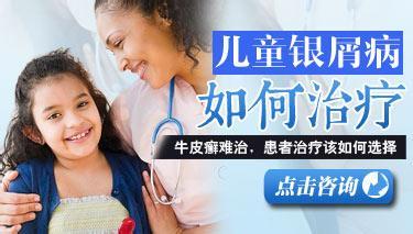 医院治疗宝宝牛皮癣的方法是什么?
