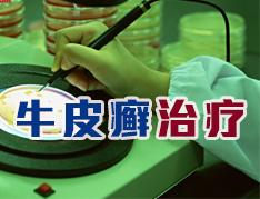 中医治疗牛皮癣有哪些独特优势
