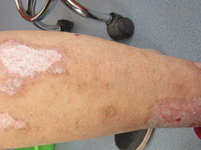 牛皮癣治疗需要多久患者才能痊愈呢